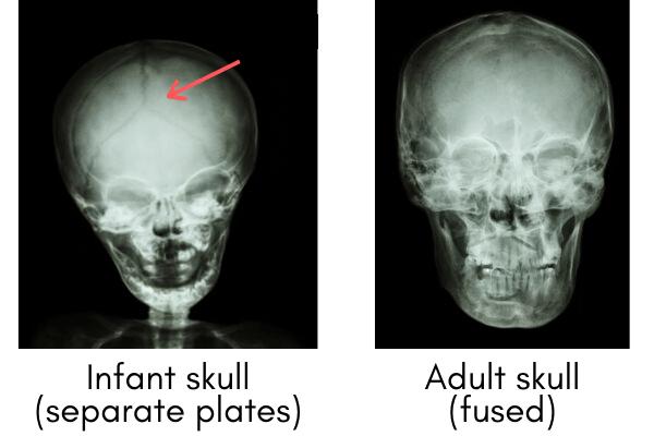 Infant skull vs. adult skull